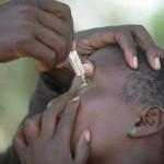 tracoma